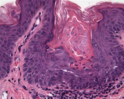 Porokeratosis | Primary Care Dermatology Society | UK